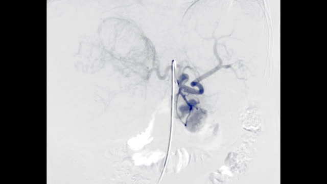 vídeos y material grabado en eventos de stock de tace o carcinoma hepatocelular de quimioembolización arterial transcatéter. - arteriograma