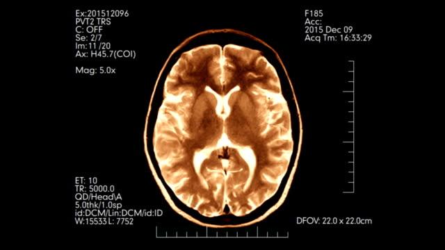 Orange top view brain mri scan medical display animation video