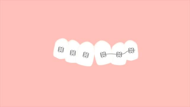 vídeos y material grabado en eventos de stock de tratamiento de ortodoncia - ortodoncista