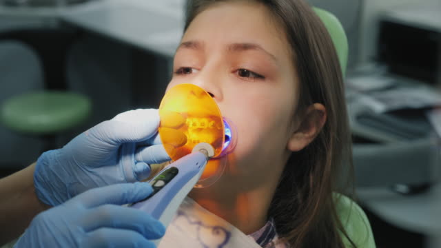 vídeos y material grabado en eventos de stock de el ortodoncista brilla sobre los dientes con una lámpara fotopolímero - ortodoncista