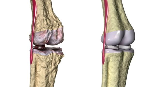 stockvideo's en b-roll-footage met artrose: kniegewricht met pezen en kraakbeen - dierlijk bot