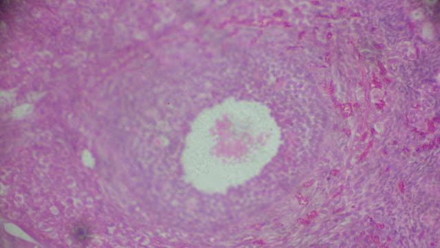 ovarium kesiti mikroskobu içinde - dişçi stok videoları ve detay görüntü çekimi