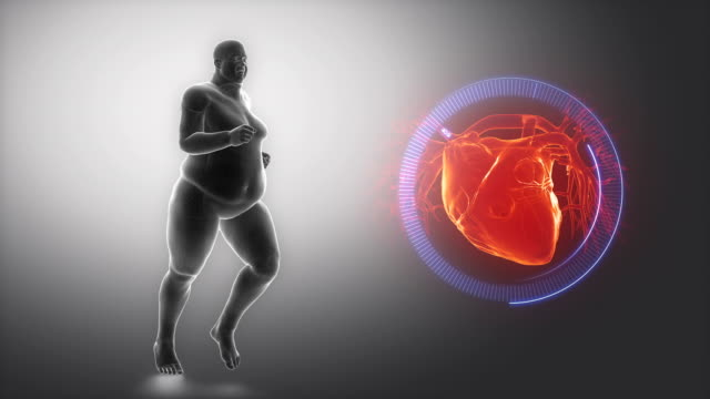 Overweight man heart issue video