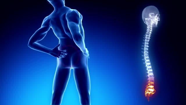 Pain in backbone - healthcare concept video