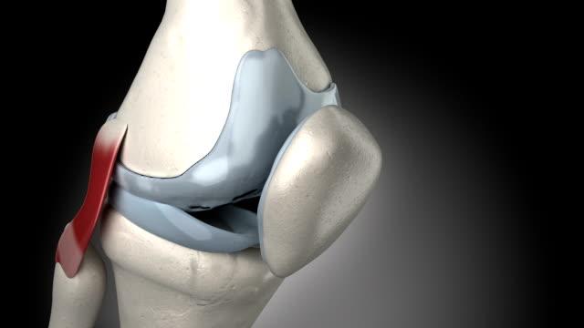 vídeos de stock, filmes e b-roll de dor no joelho artrite animation - articulação humana