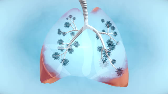 Pandemic Illness in Lung - 4K Resolution Lung Cancer, Lung Infection, COVID-19, Pandemic - Illness, Coronavirus lung stock videos & royalty-free footage