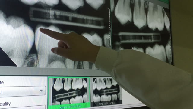 panoramic x-ray of teeth on the monitor with dentist hand - radiografia video stock e b–roll