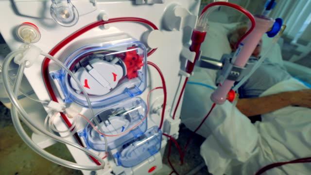 vídeos de stock, filmes e b-roll de paciente durante o procedimento de hemodiálise. máquinas de diálise moderna fazendo a purificação do sangue. - rim órgão interno