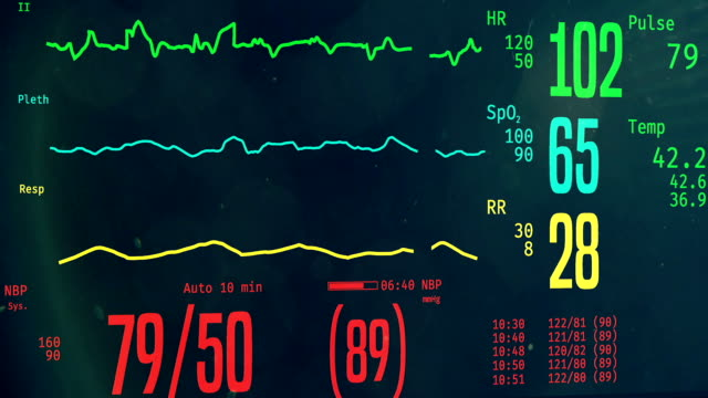 Patient dying in hospital, ICU monitor with dropping vital signs, clinical death video