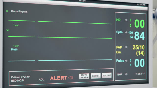 EKG Patient Heart Monitor Flat Line Emergency at Hospital View of EKG patient heart monitor screen with alert alarm going off due to patient having flat line on their vital signs. pulse trace stock videos & royalty-free footage