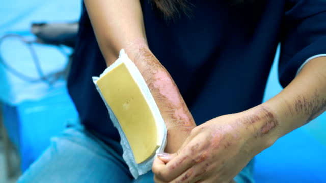Patient Removing Bandage from her arm in hospital video