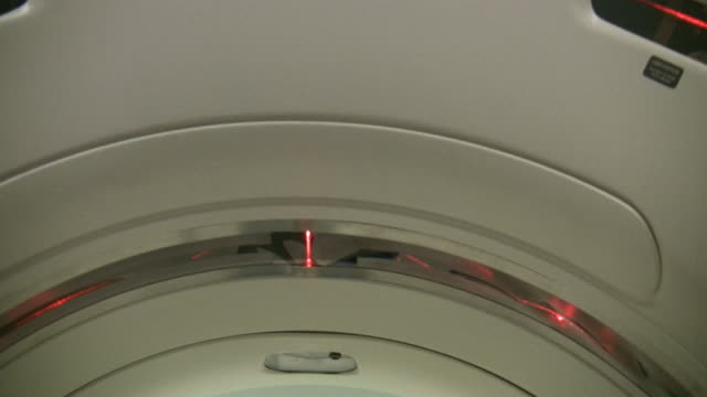 vídeos de stock e filmes b-roll de doente vista do'scanner' - tomografia