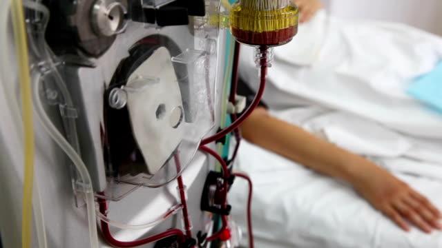 vídeos de stock, filmes e b-roll de paciente sangue de purificação - diálise