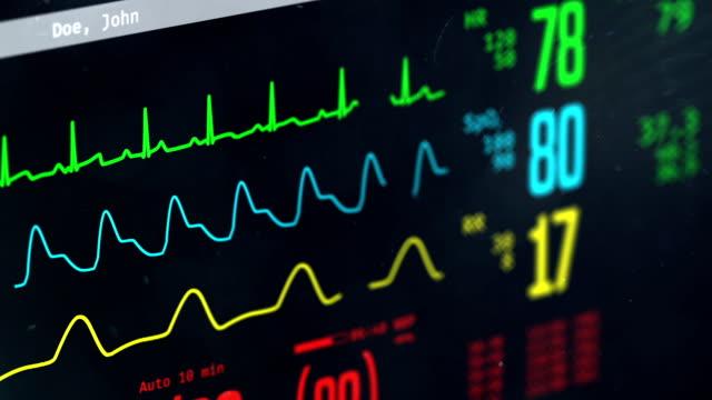 vídeos de stock e filmes b-roll de patient's condition monitored in intensive care unit, screen with vital signs - ataque cardíaco