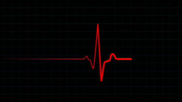Patient's death on ECG monitor Red flatline medical EKG screen, heart failure and patient's death on ECG monitor. Resuscitation of a patient with a heart attack on ECG monitor. Seamlessly looping animation in 4K defibrillator stock videos & royalty-free footage