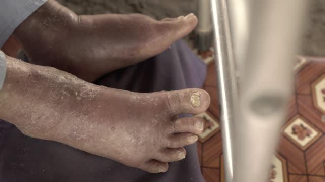 vídeos de stock e filmes b-roll de patient's feet varicose veins, bloody swelling. - coágulo