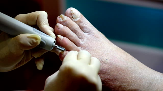 Pedicure specialist works with the patient video