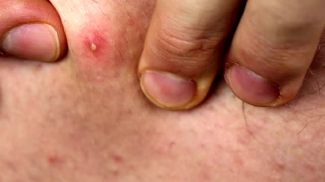 Pimple Pop video
