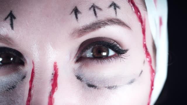 4K Plastic Surgery Victim Woman Close-up Eye video