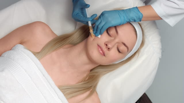 Platelet rich plasma face injections procedure | vampire facial video