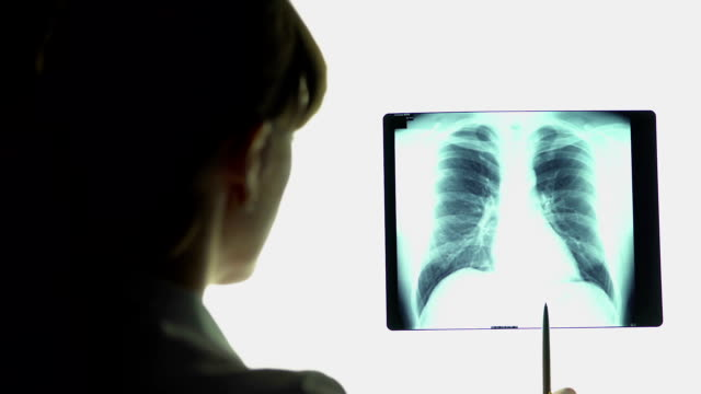 Pneumonia, therapist analyzing lungs x-ray image, making conclusions, healthcare video
