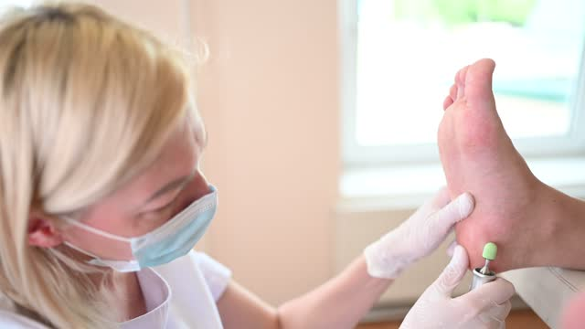 podiatrist za pomocą sprzętu szlifierskiego i procedury polerowania stóp pedicure. kosmetyczka podologia w białych rękawiczkach czyszcząc skórę nóg klienta z dętki i kukurydzy za pomocą profesjonalnego narzędzia. - pedicure filmów i materiałów b-roll