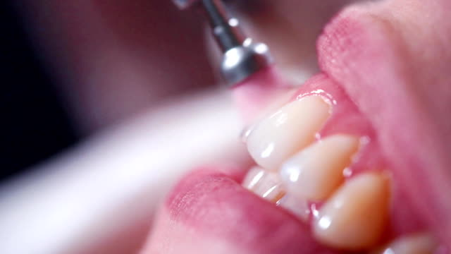 Polishing teeth in dental office video