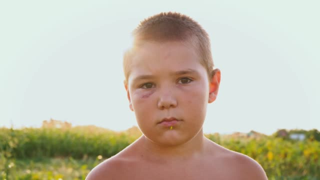 Portrait of a chubby boy with a black eye on the background of a green field, a sad child with a naked torso and a bruise on his face Portrait of a chubby boy with a black eye on the background of a green field, a sad child with a naked torso and a bruise on his face, close-up only boys stock videos & royalty-free footage