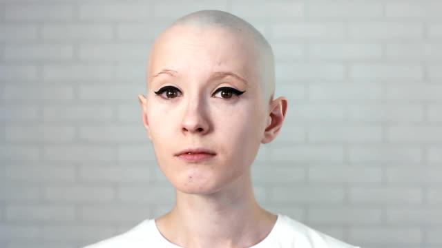 kafa dönme ve kameraya bakarak kanser muzdarip üzgün, depresif bir kadın portresi - meme hayvan vücudu bölümleri stok videoları ve detay görüntü çekimi