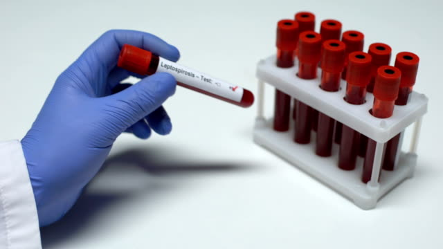 Positive Leptospirosis test, doctor showing blood sample in tube, lab research