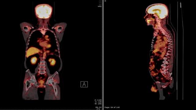 vídeos y material grabado en eventos de stock de tomografía por emisión de positrones (pet) - escán médico