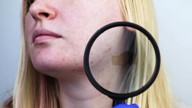 post-acne under a magnifying glass. skin with acne scars. woman at the appointment with a dermatologist - derma video stock e b–roll