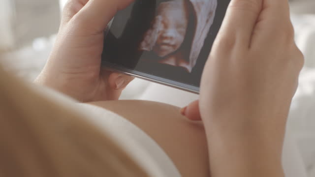 Pregnant woman watching ultrasound image on smart phone video