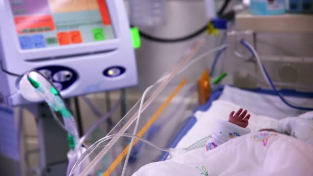 prematurely born infant in hospital ward - intensivvårdsavdelning bildbanksvideor och videomaterial från bakom kulisserna