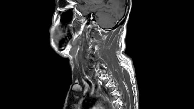 MRI OF CERVICAL SPINE HISTORY: presented with history of vehicle accident and cervical spine injury with dislocate,Out of focus and blurry when views full solution.medical concept MRI OF CERVICAL SPINE HISTORY: A 57-year-old male, presented with history of vehicle accident and cervical spine injury with dislocate,Out of focus and blurry when views full solution.medical concept neck stock videos & royalty-free footage