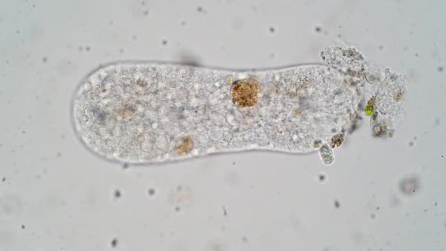 vídeos de stock e filmes b-roll de protozoa amoeba is a type of cell or organism which has the ability to alter its shape, primarily by extending and retracting pseudopods. - amiba