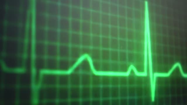 vídeos y material grabado en eventos de stock de pulso ekg - electrocardiograma