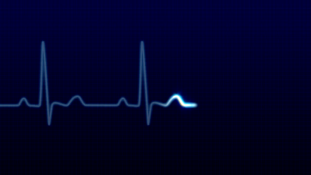 EKG / Pulse Waveform HD  pulse trace stock videos & royalty-free footage