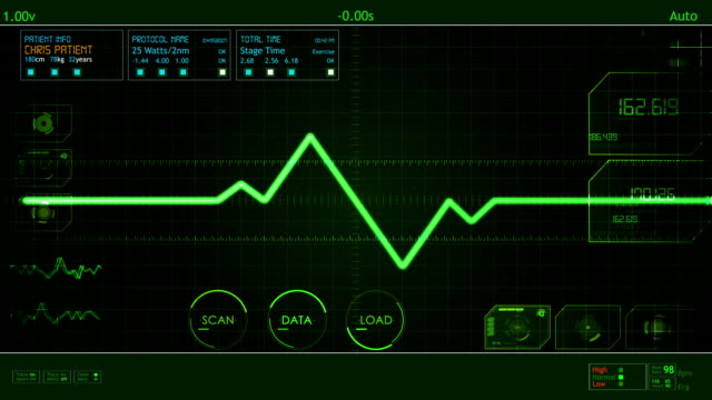 EKG Pulse Waveform screen HUD video