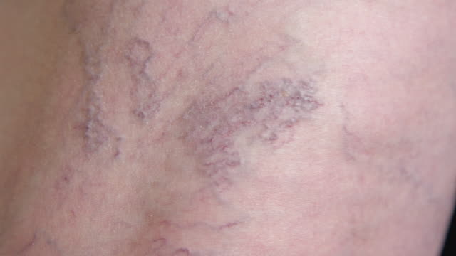 vídeos de stock e filmes b-roll de close up macro: purplish hued varicose veins twisting around elderly lady's leg. - veia humana