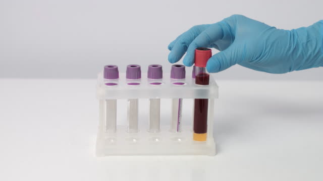 Putting two test tubes with blood samples in rack