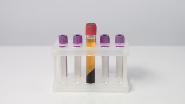 ラックに遠心分離した血液プラズマを2つの試験管に入れる - 分離点の映像素材/bロール