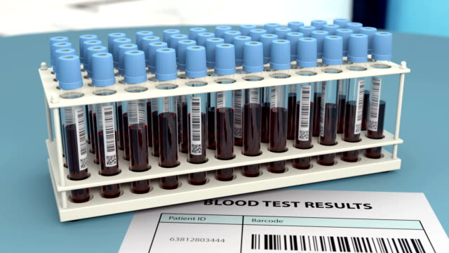Rack with blood samples in research laboratory video