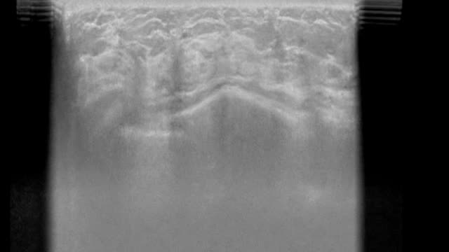 Radiogram- woman's breast video