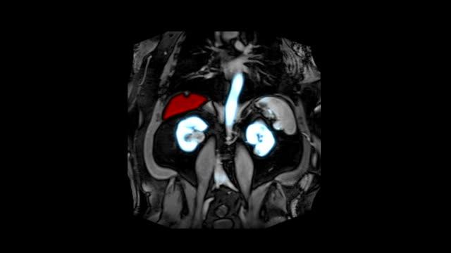 vídeos de stock, filmes e b-roll de exames radiológicos imagens - rim órgão interno