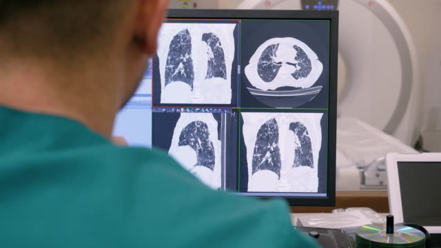 Radiologist looking at monitors with lungs activity results in control room. 4K