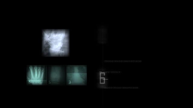 Radiology video