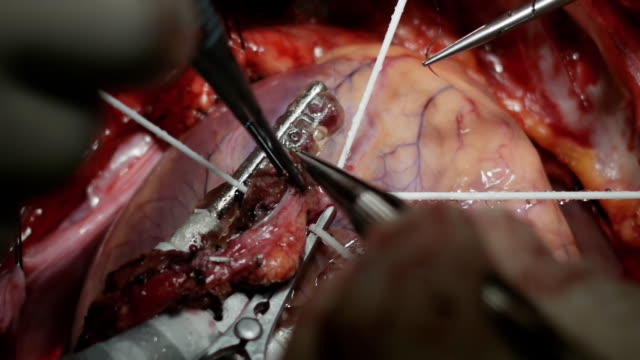 vídeos de stock, filmes e b-roll de real artéria coronária bypass cirurgia filmagem: costura - marcapasso cirurgia cardíaca