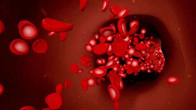 vídeos de stock e filmes b-roll de red blood cells floating in a blood vein - glóbulo vermelho