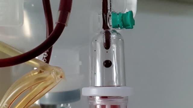 스포이드 카운터의 붉은 혈액 강하. - aids 스톡 비디오 및 b-롤 화면